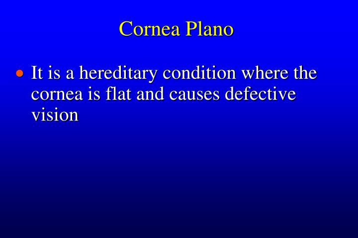 Cornea Plano