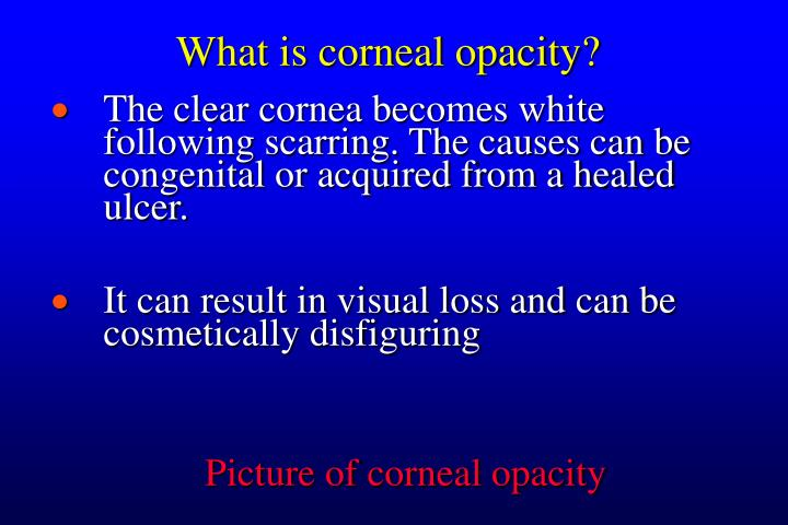What is corneal opacity?