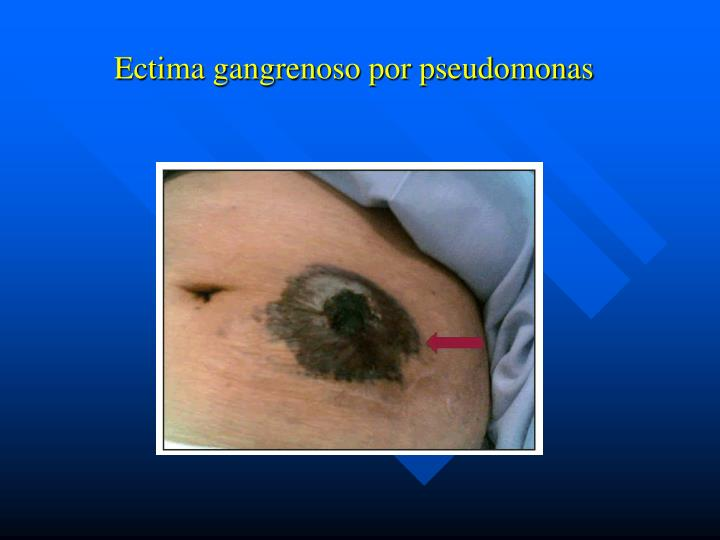 Ectima gangrenoso por pseudomonas