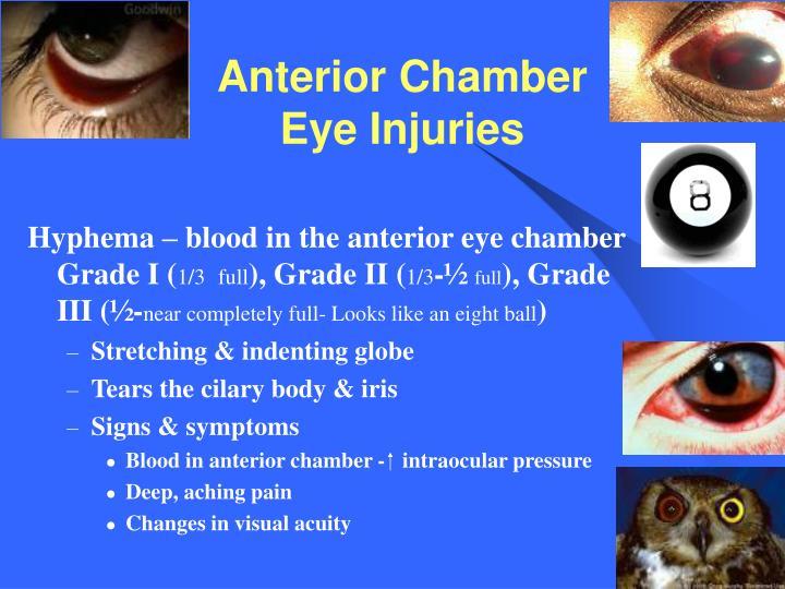 Anterior Chamber Eye Injuries