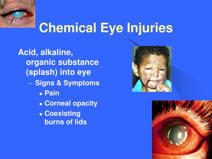 Chemical Eye Injuries