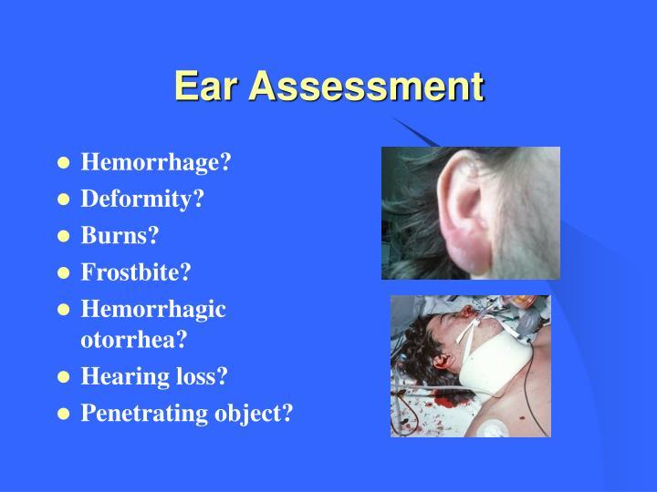 Ear Assessment
