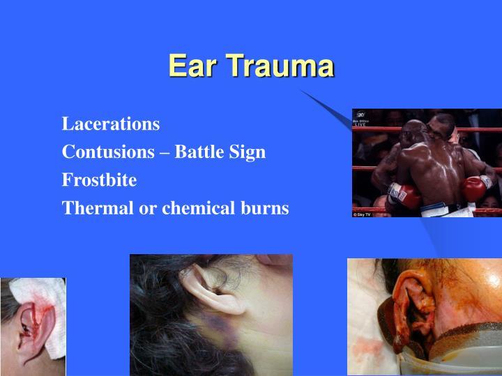 Ear Trauma