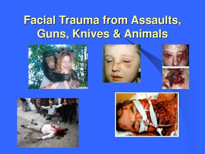 Facial Trauma from Assaults, Guns, Knives & Animals