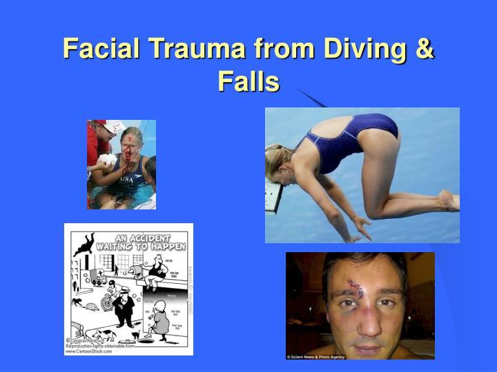 Facial Trauma from Diving & Falls