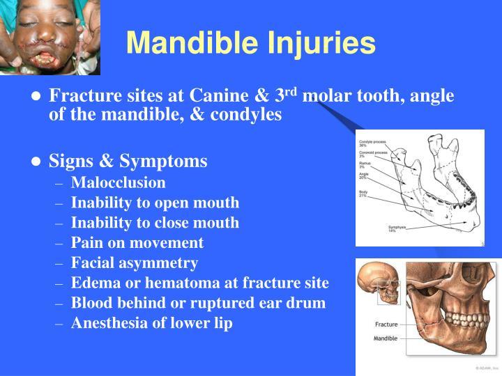 Mandible Injuries