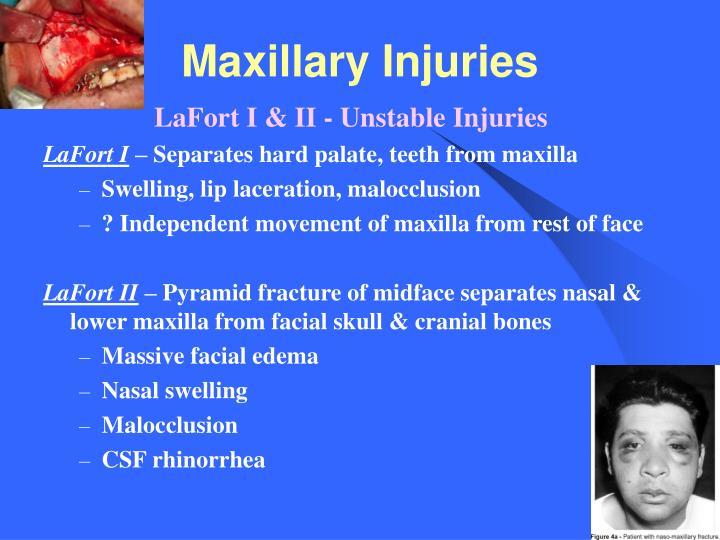 Maxillary Injuries