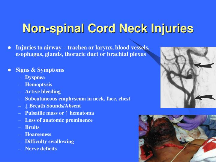 Non-spinal Cord Neck Injuries