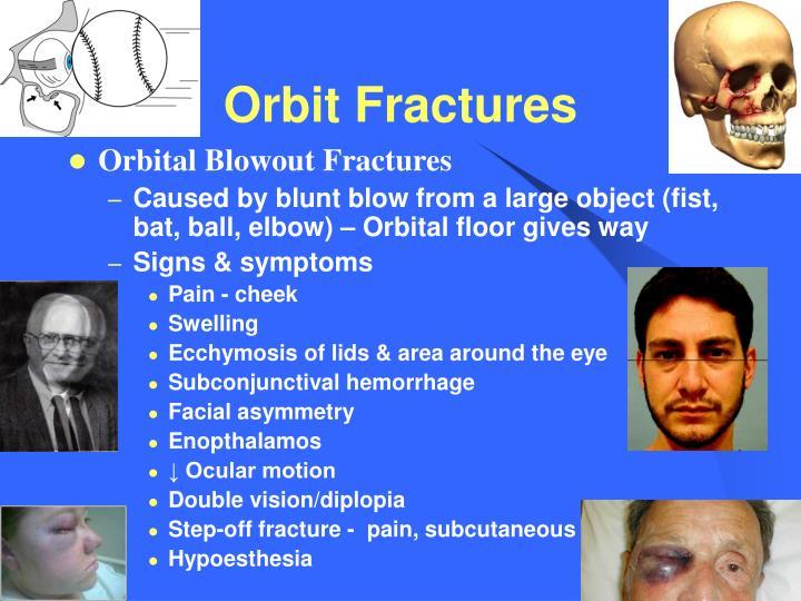 Orbit Fractures