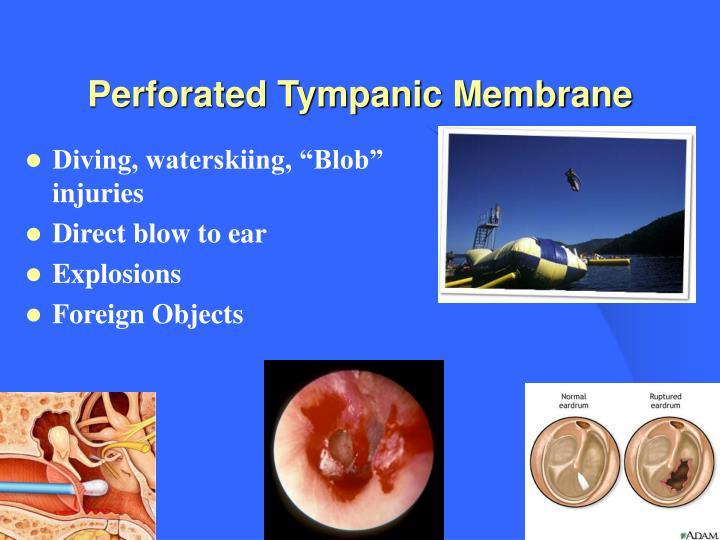 Perforated Tympanic Membrane