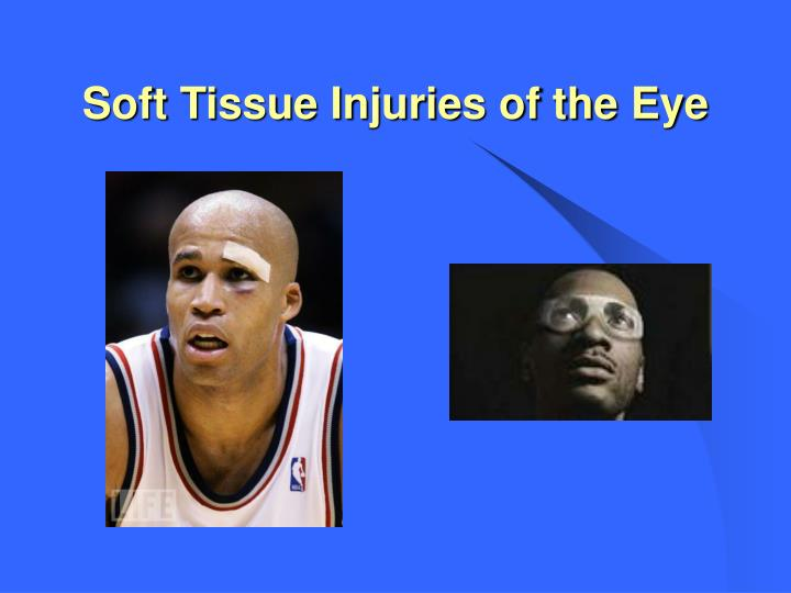Soft Tissue Injuries of the Eye