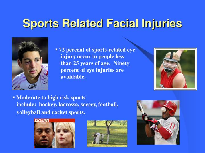 Sports Related Facial Injuries