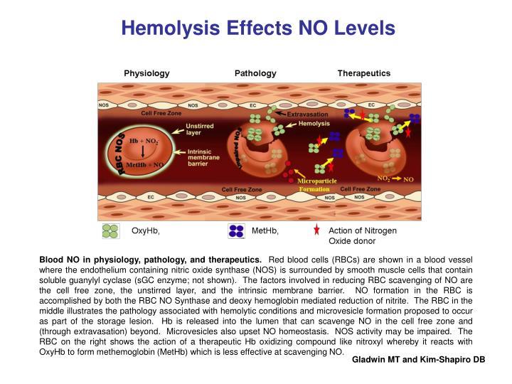 Hemolysis Effects NO Levels