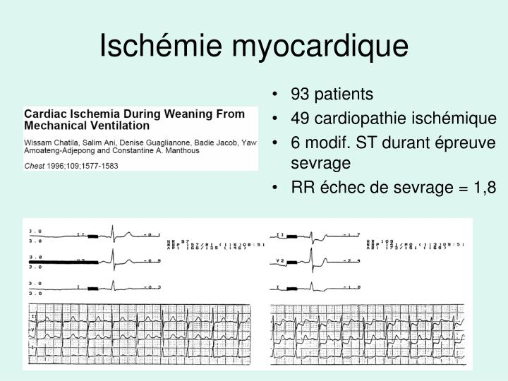 Ischémie myocardique