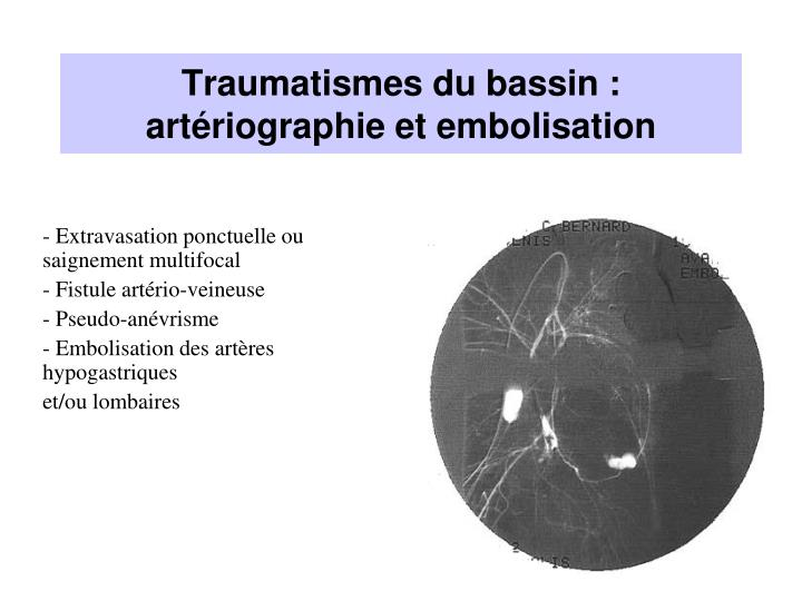 Traumatismes du bassin : artériographie et embolisation