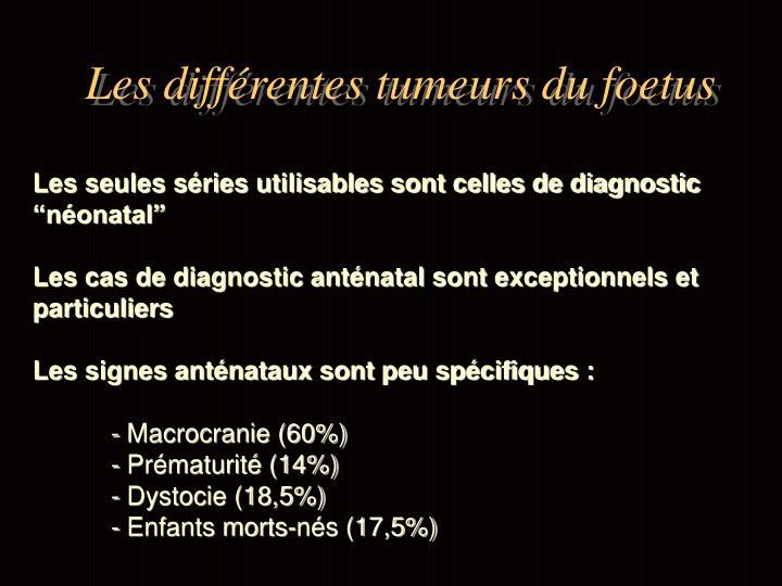 Les différentes tumeurs du foetus