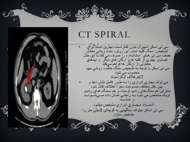 Ct spiral