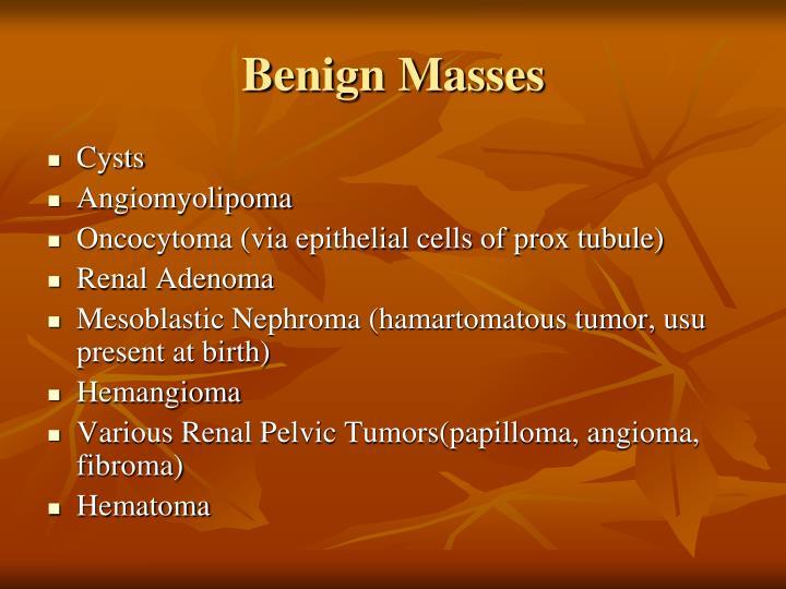 Benign Masses