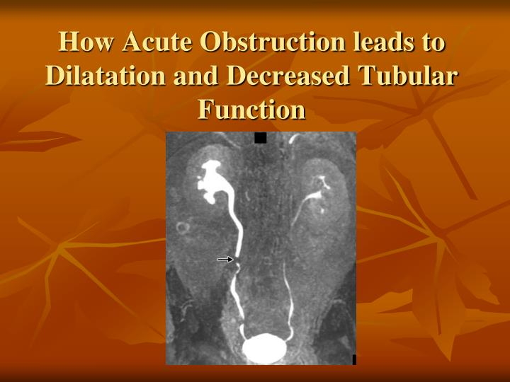 How Acute Obstruction leads to Dilatation and Decreased Tubular Function