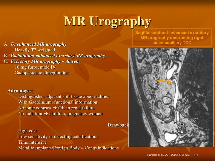 MR Urography