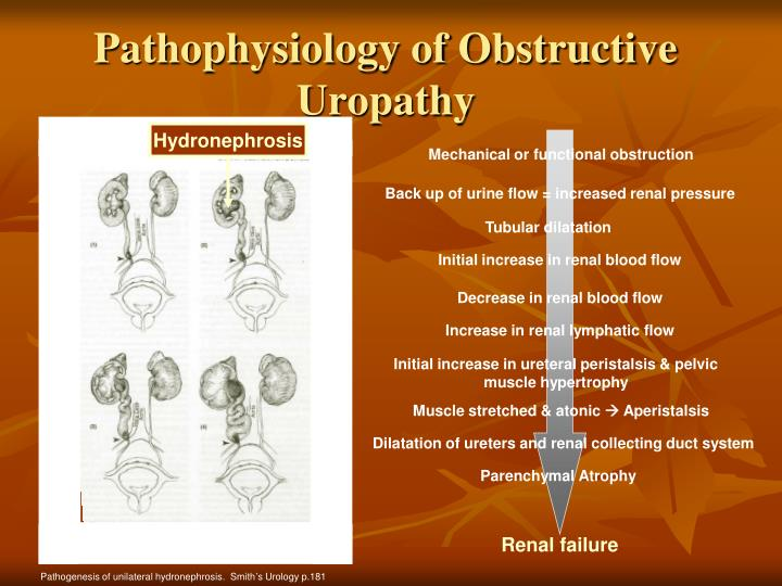 Pathophysiology of Obstructive Uropathy