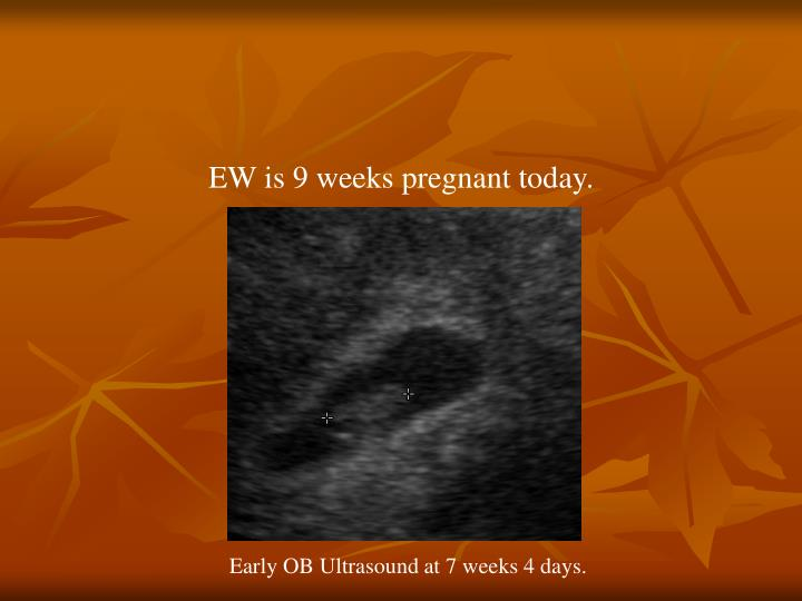 EW is 9 weeks pregnant today.