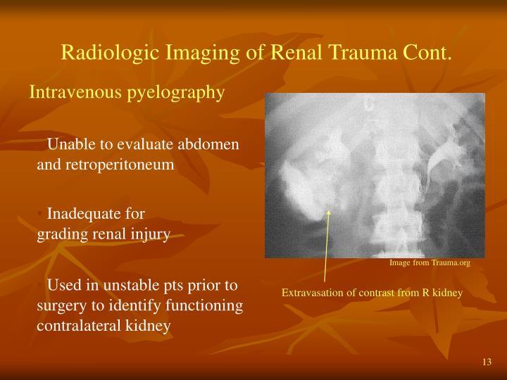 Radiologic Imaging of Renal Trauma Cont.
