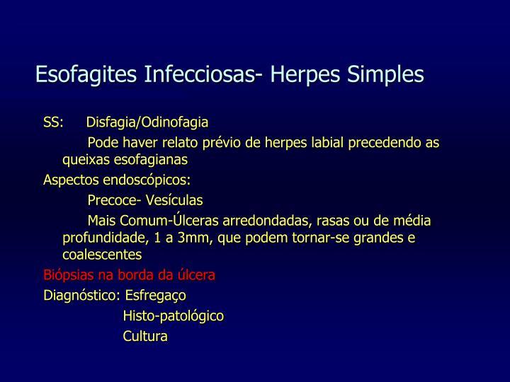 Esofagites Infecciosas- Herpes Simples