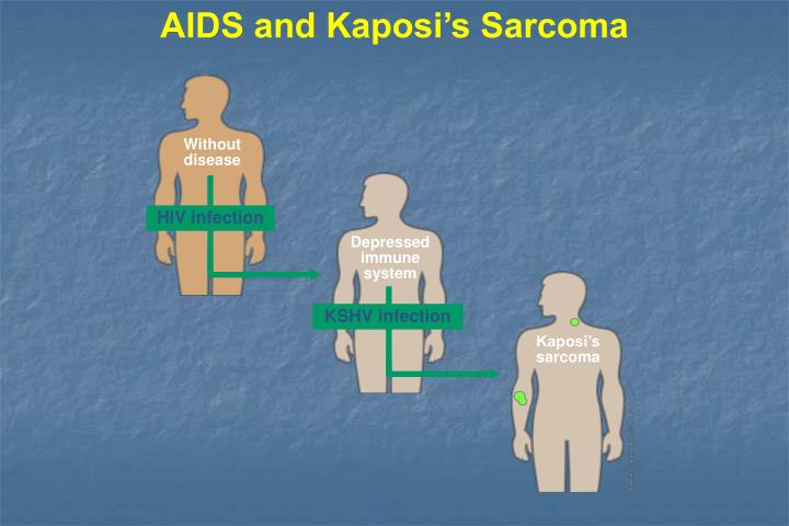 AIDS and Kaposi's Sarcoma