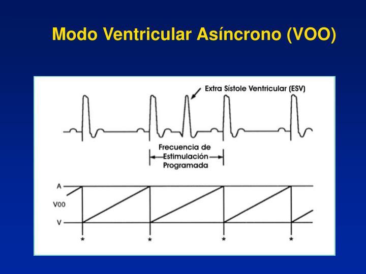 Modo Ventricular Asíncrono (VOO)