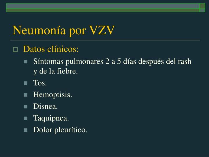 Neumonía por VZV