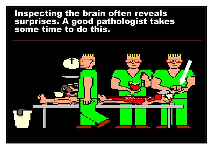 Inspecting the brain often reveals surprises. A good pathologist takes some time to do this.