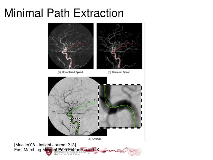 Minimal Path Extraction