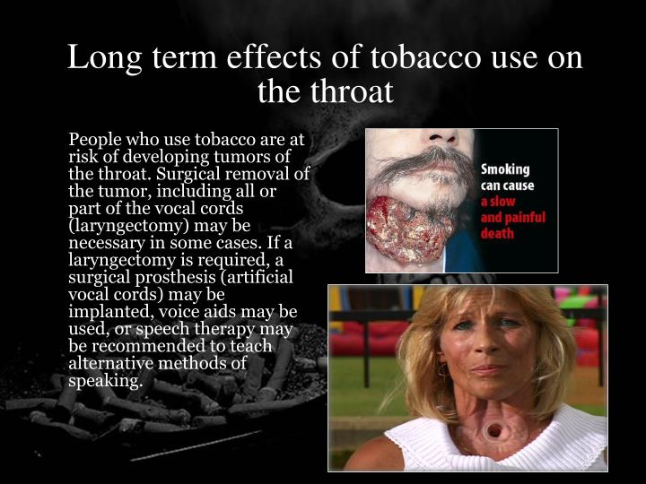 Long term effects of tobacco use on the throat