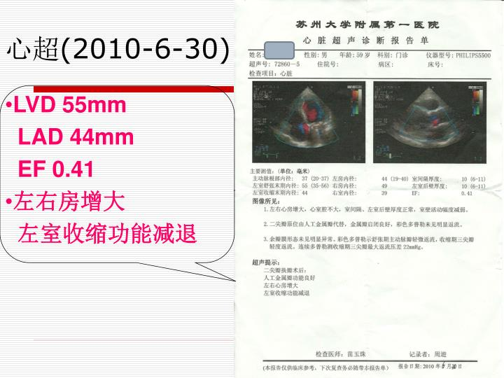 LVD 55mm