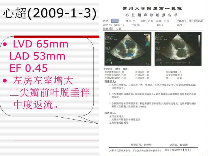 LVD 65mm