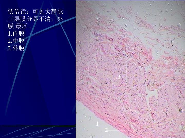 低倍镜:可见大静脉三层膜分界不清,外膜 最厚。