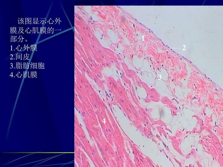 该图显示心外膜及心肌膜的一部分。