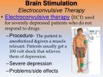 brain stimulation electroconvulsive therapy