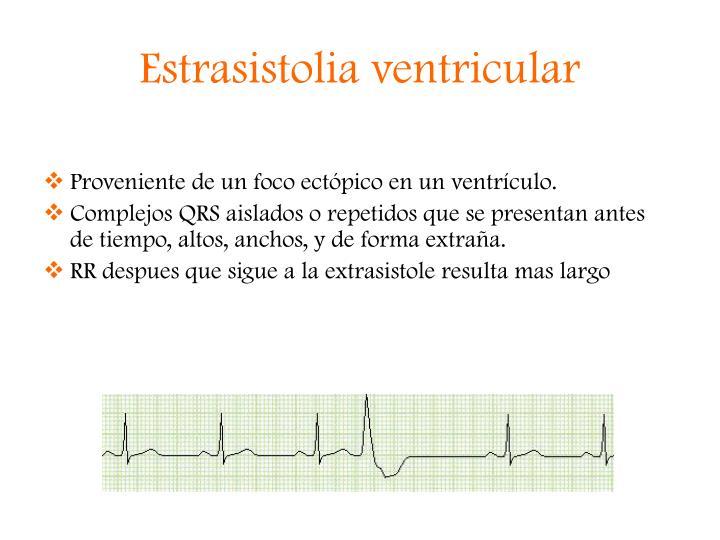Estrasistolia ventricular