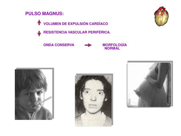 PULSO MAGNUS: