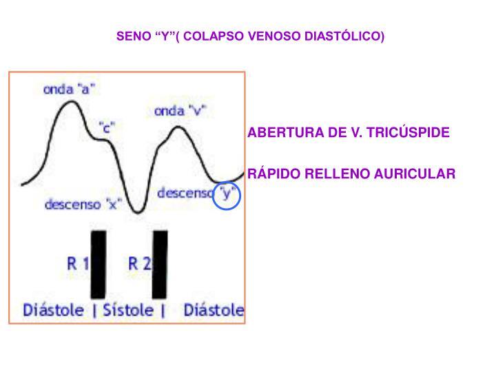ABERTURA DE V. TRICÚSPIDE