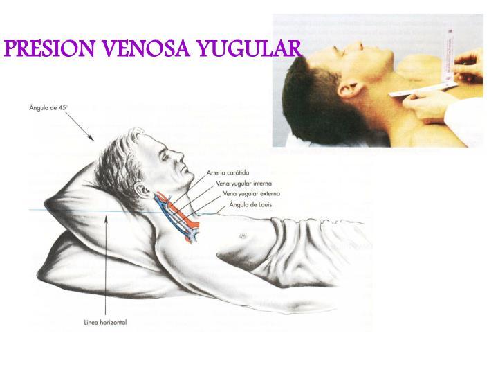 PRESION VENOSA YUGULAR