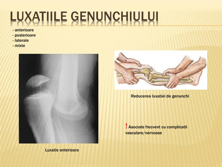 Luxatiile genunchiului