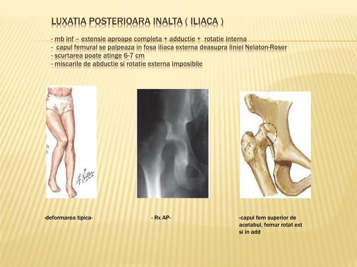 luxatia