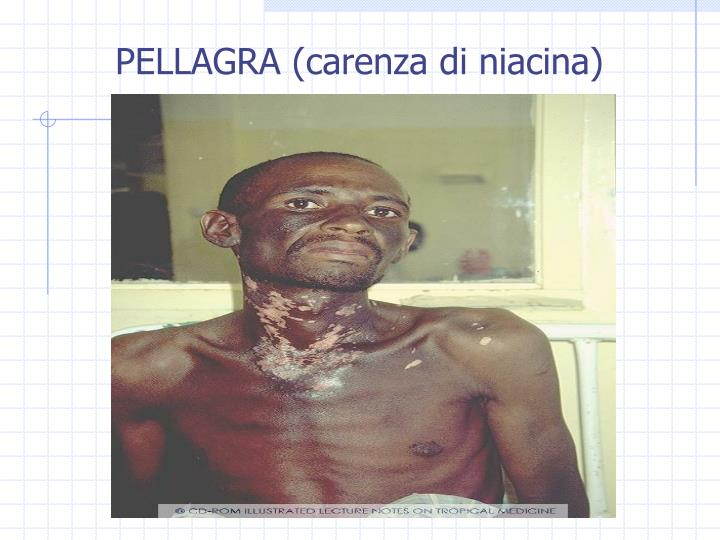 PELLAGRA (carenza di niacina)