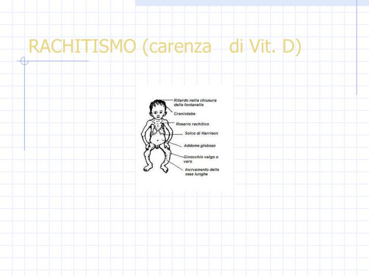 RACHITISMO (carenza   di Vit. D)