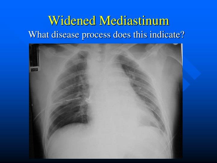 Widened Mediastinum