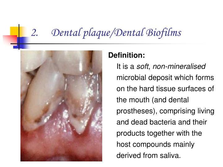 Dental plaque/Dental Biofilms