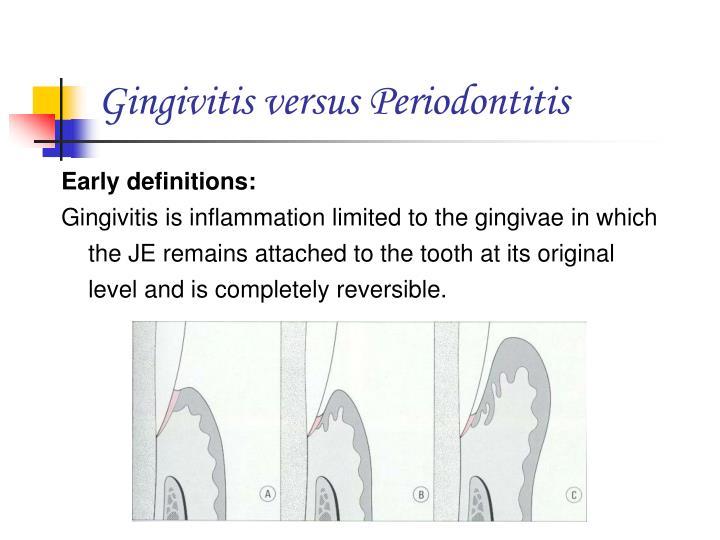 Gingivitis versus Periodontitis